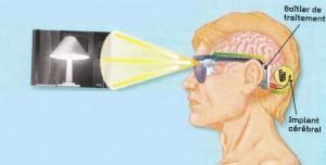 oeil bionique schéma